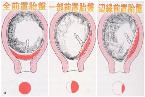 前置胎盤の種類